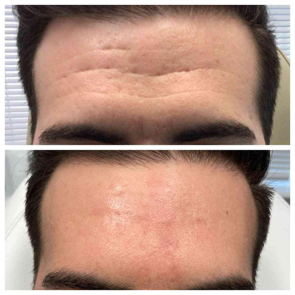 forehead-wrinkles-before-and-after