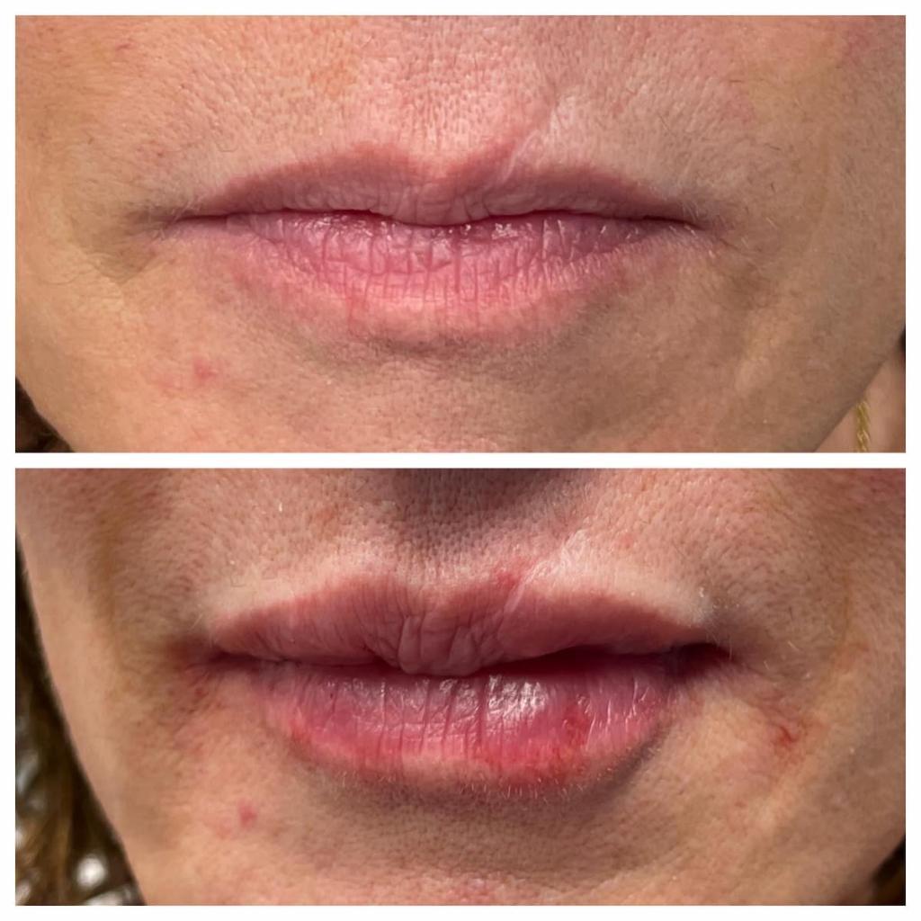 lip-filler (1)