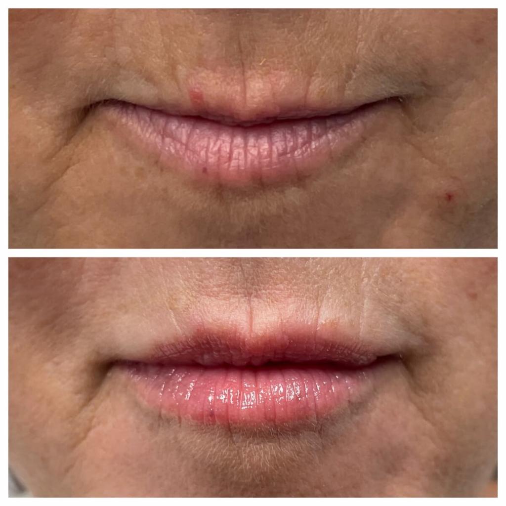 lip-filler (2)