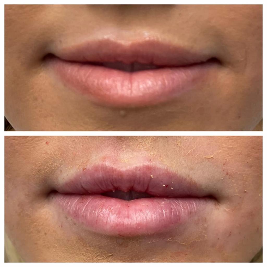 lip-filler (3)