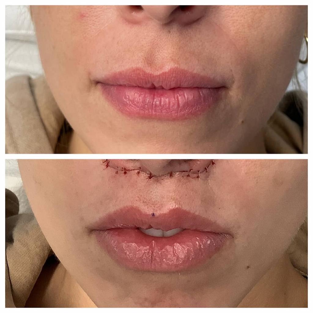 lip-lift (7)