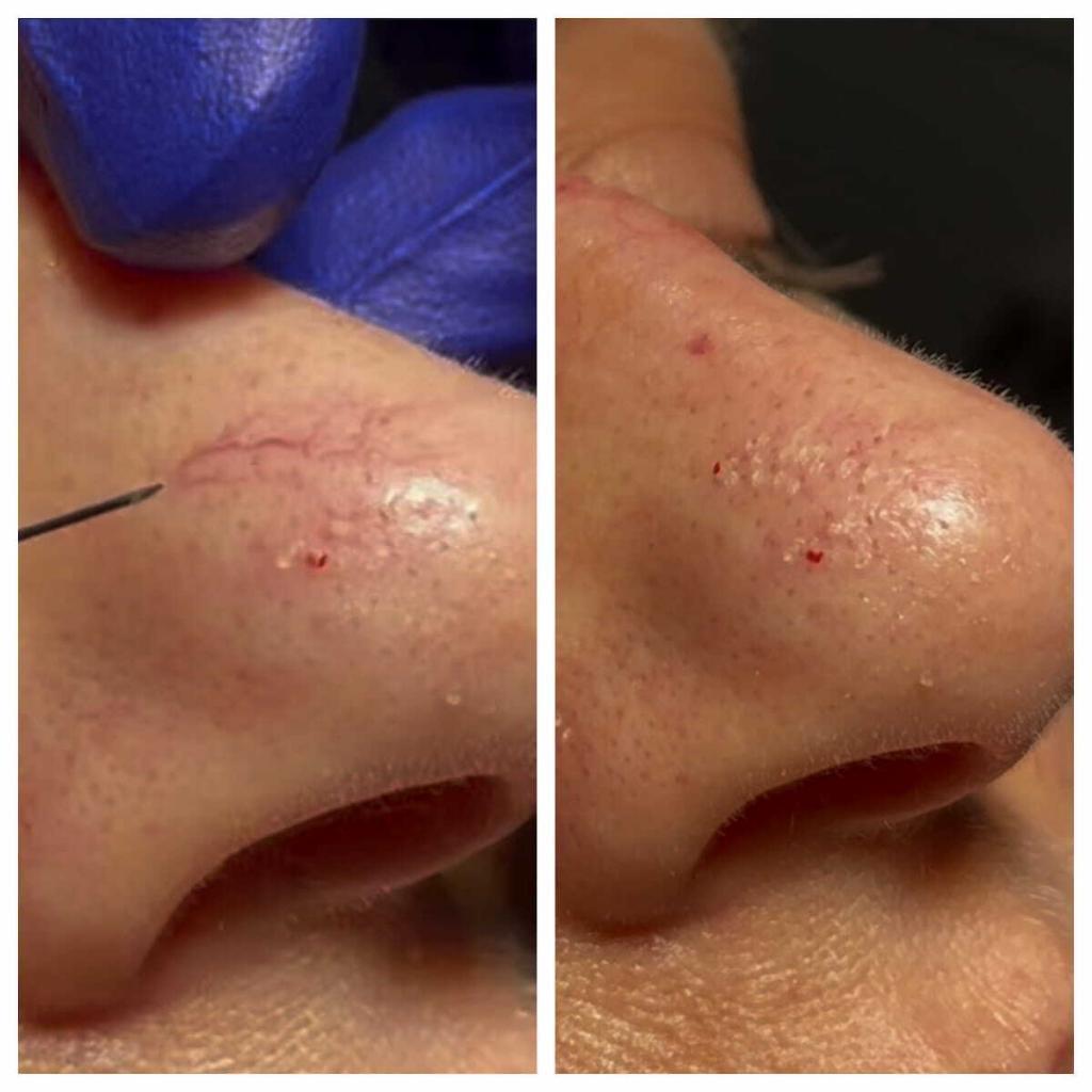 vein treatment nose