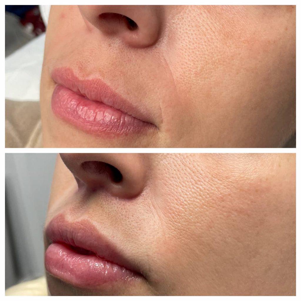 lip-lift