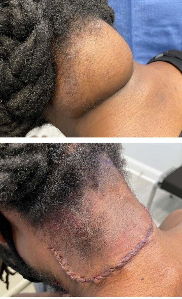 lipoma-removal