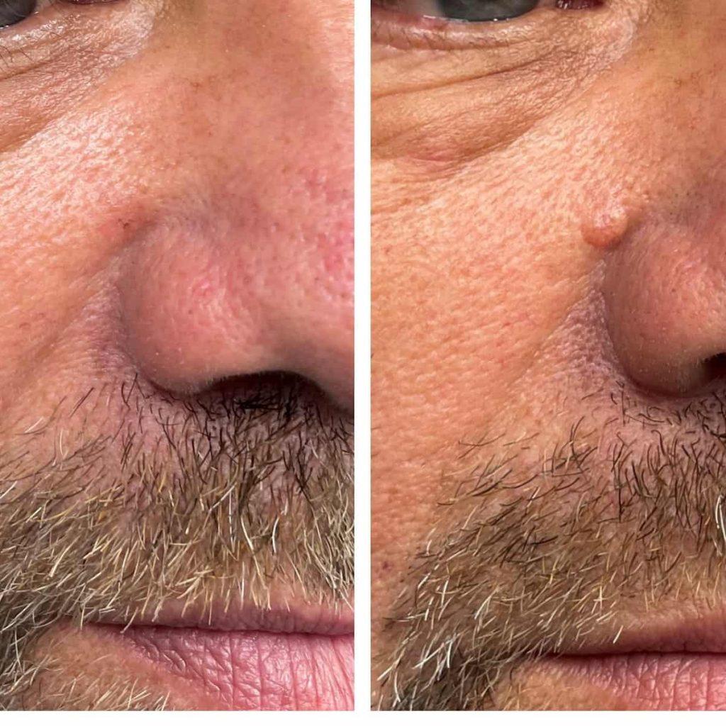 mole-removal-jacksonville-1